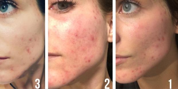 skin in phases.JPG